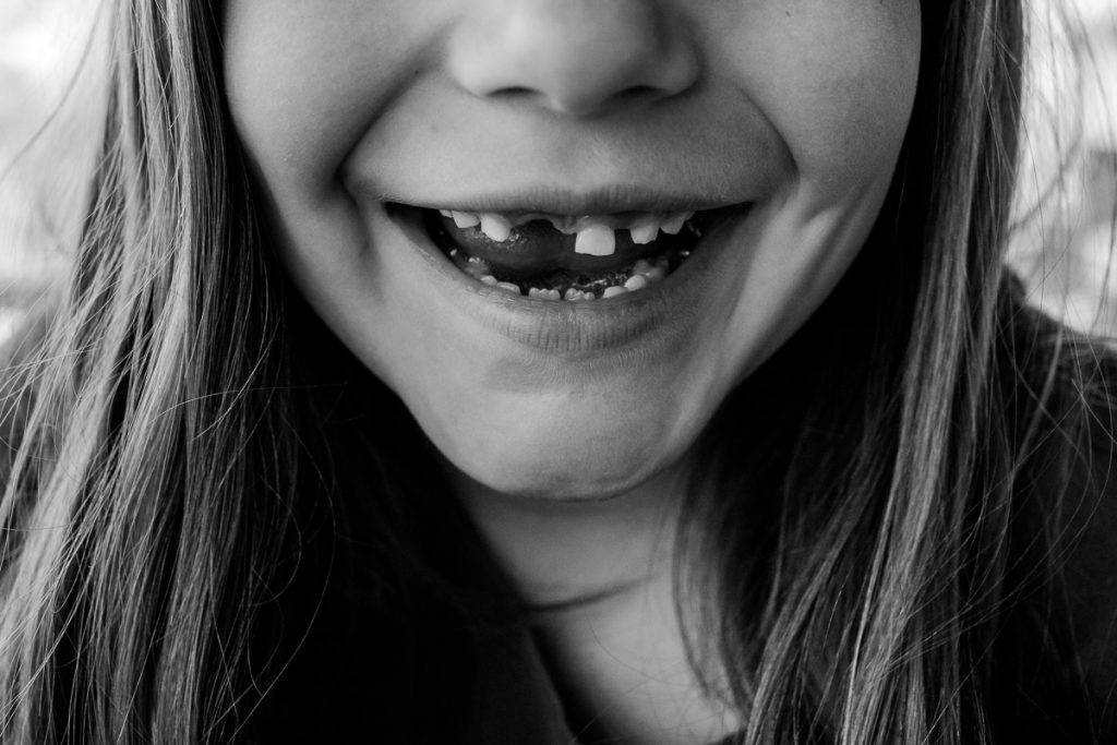Girl smiling and showing off missing teeth